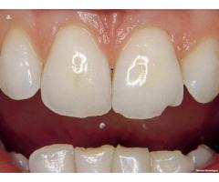 the oral health procedure and other dental educational videos